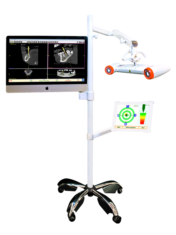 Implant Real-time Imaging System
