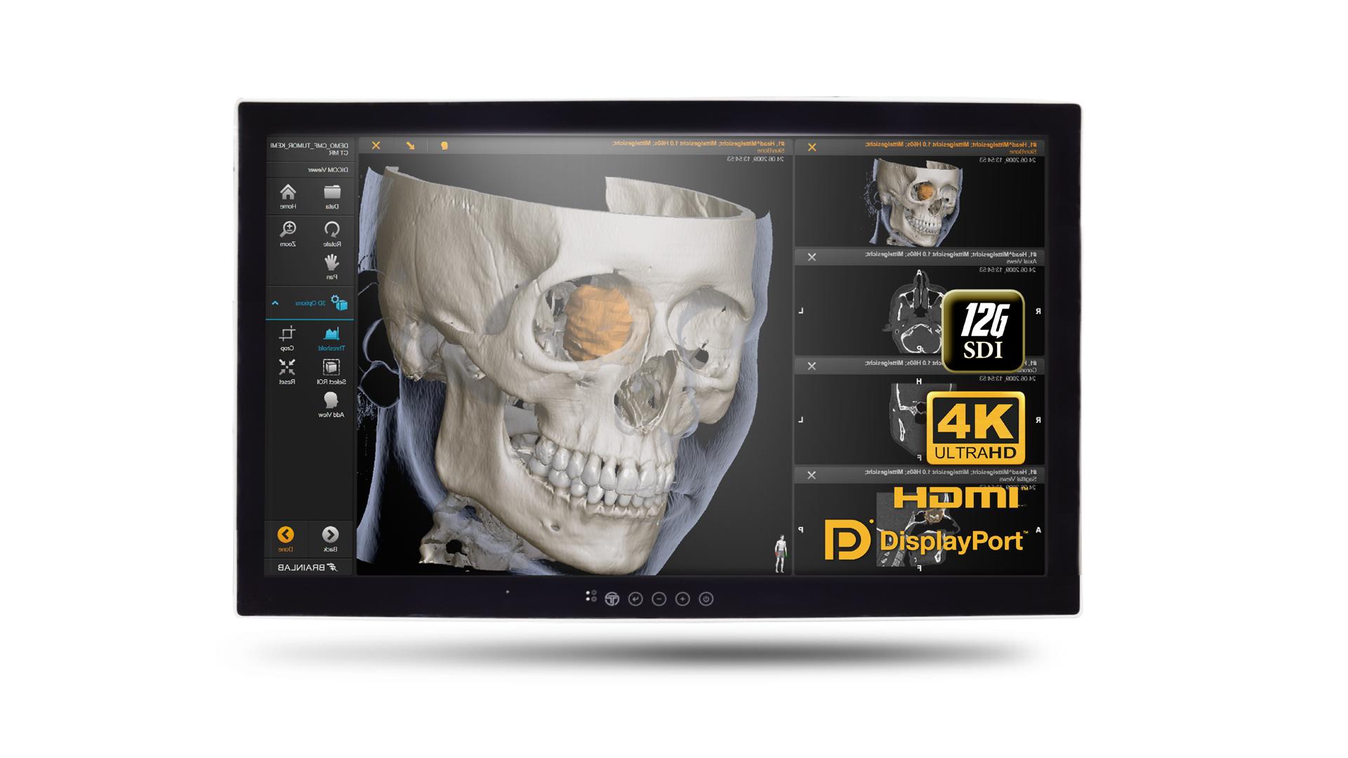 32吋高解析度手術影像處理系統